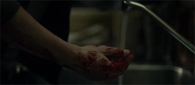 Blood work...
