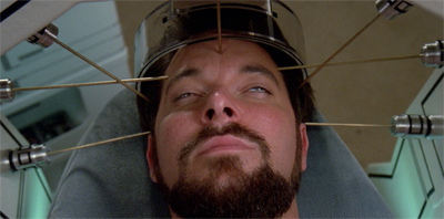 Pulaski's acupuncture skills left a lot to be desired...