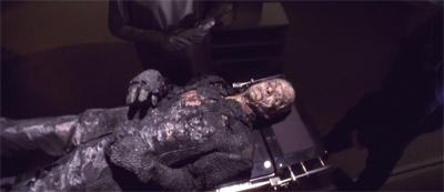 Alien autopsy...