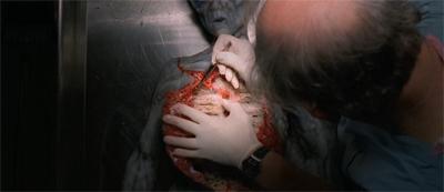 Alien autopsy. For realz.