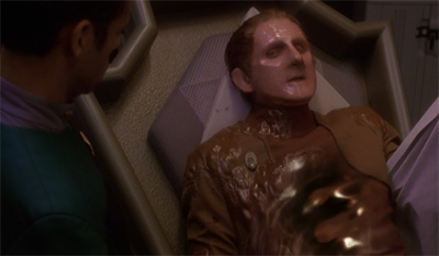 Odo's got the flu(id)...